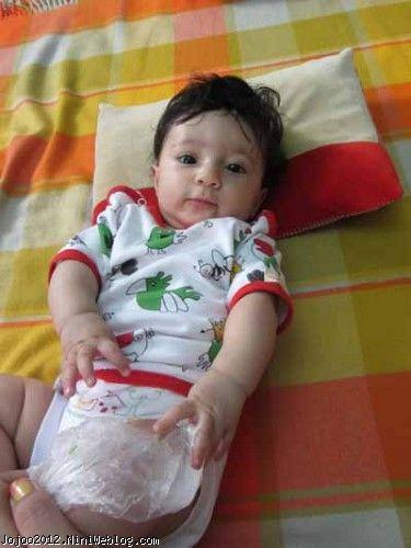 سرماخوردگی نوزاد دو ماهه