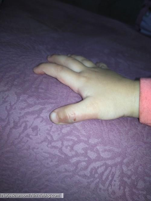 اینم انگشت شیطون خانوم